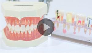 歯科矯正動画