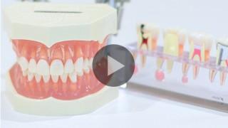 歯が動く動画