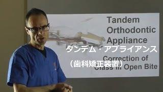 タンデム・アプライアンス(歯科矯正装置)