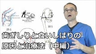 歯ぎしりと食いしばりの原因と治療法(中編)