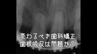 変わるべき歯科矯正:歯根吸収は問題か?