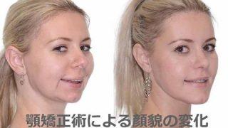 顎矯正手術は増えているのでしょうか?