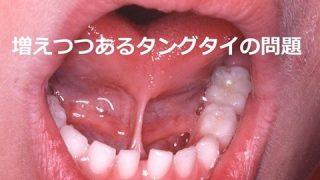 タング・タイ(舌小帯短縮症)について
