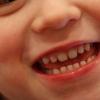 アメリカの早期矯正(1期治療・混合歯列期の矯正)