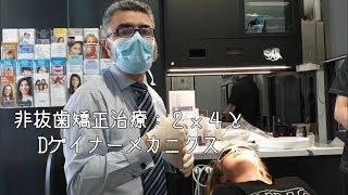 非抜歯矯正治療:2x4と Dゲイナーメカニクス