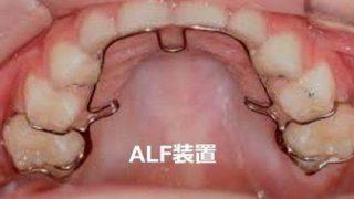 舌をジャマしない機能矯正装置を見直そう