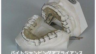 下アゴの成長を促す顎間装置について